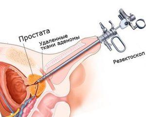 Во время операции в мочеиспускательный канал вводится резектоскоп
