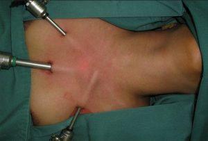 Проведение операции по удалению щитовидной железы