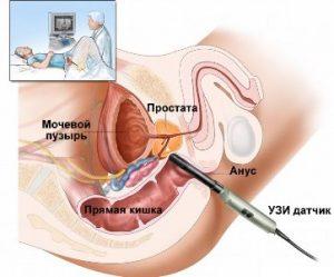 УЗИ предстательной железы проводится трансректально
