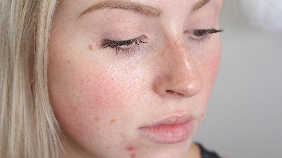 Развитие гипотиреоза сопровождается появлением прыщей на лице