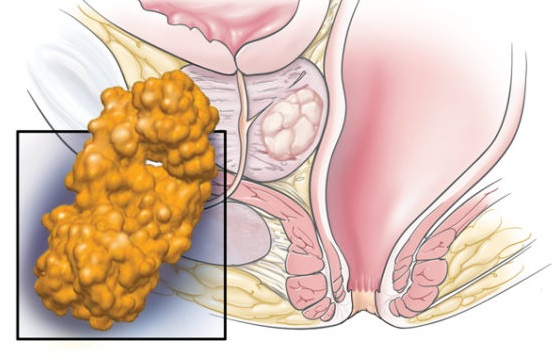 prostate cancer metathesis