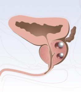 ПСА отклоняется от нормы при опухолях в простате