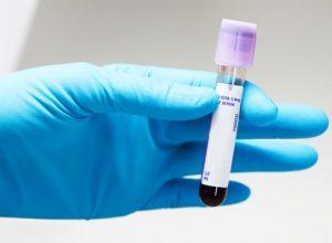 Анализ ПСА назначается при подозрении на опухоль простаты
