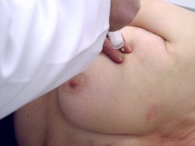 Пункция - распространенный метод лечения кисты