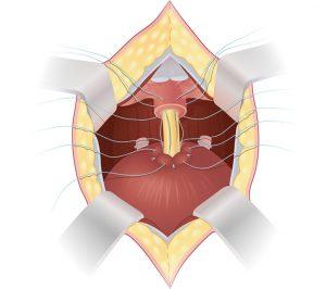 При радикальной простатэктомии проводится полное удаление предстательной железы