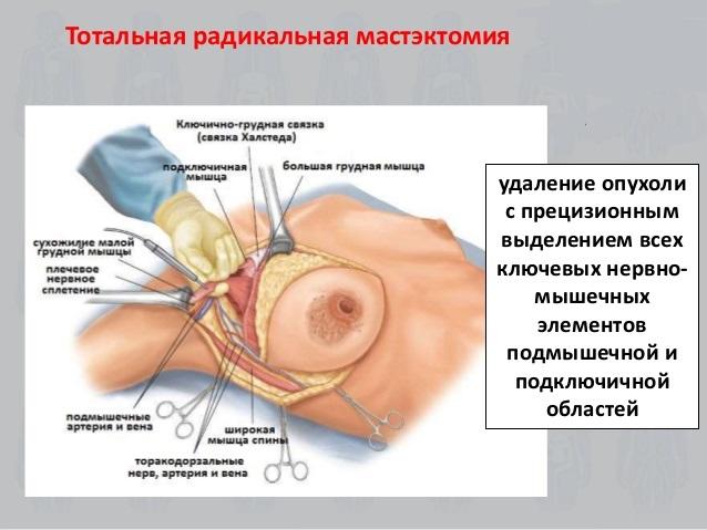 Радикальная проводится при полном поражении груди раком