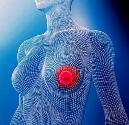 Рак груди 2 стадии - это карцинома 2 см в диаметре