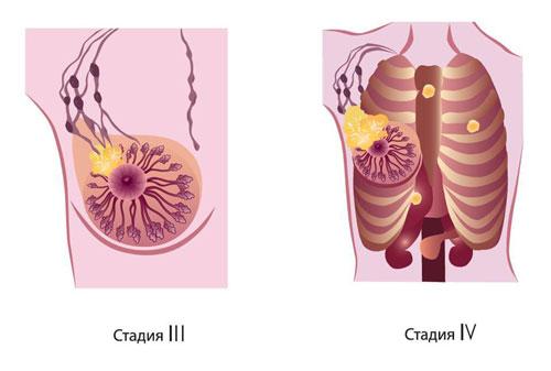 На третьей стадии раковые клетки  распространяются на лимфоузлы