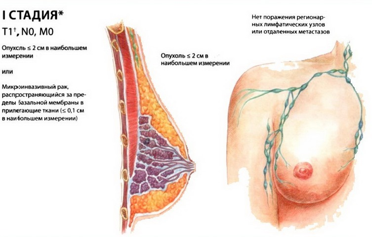 Первая стадия рака - это начальная форма опухоли