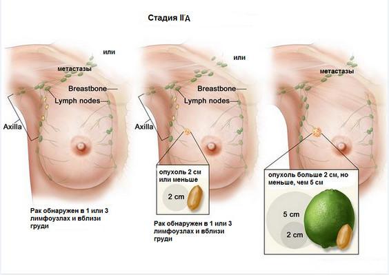 Продолжительность жизни при обнаружении рака 2 а стадии составляет 5-8 лет