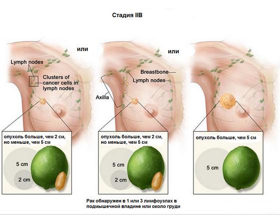 Карцинома определяется при помощи УЗИ, маммографии и рентгена