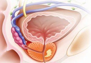 На второй стадии рак предстательной железы не дает метастазы