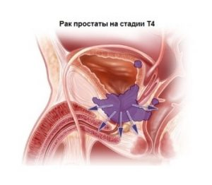 Рак простаты на 4 стадии имеет неутешительный прогноз