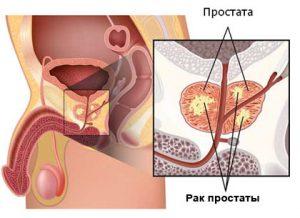 Обследование простаты проводят при подозрении на рак
