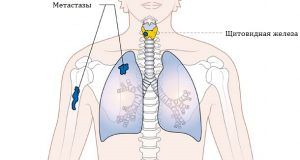 На запущенных стадиях рак щитовидки дает метастазы
