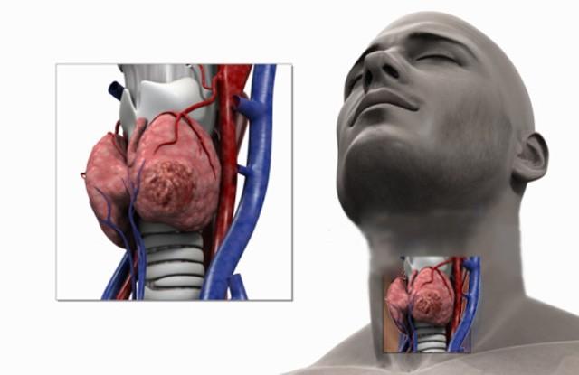 Рак щитовидной железы имеет схожие симптомы с другими заболеваниями этого органа