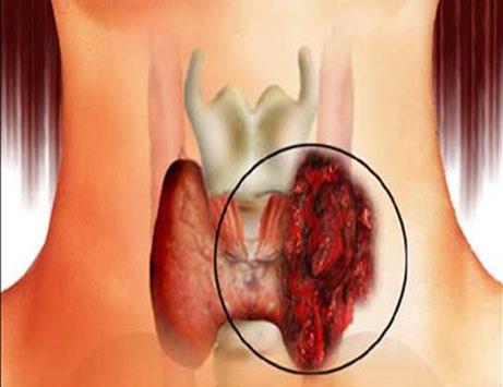 Рак щитовидной железы быстро прогрессирует