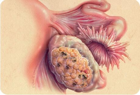 Если женщина перенесла операцию по удалению опухоли в яичниках, существует риск рецидива