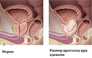 При развитии аденомы предстательная железа увеличивается в размерах