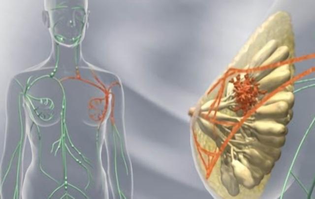 В разрастаниях может преобладать железистый, фиброзный или кистозный компонент