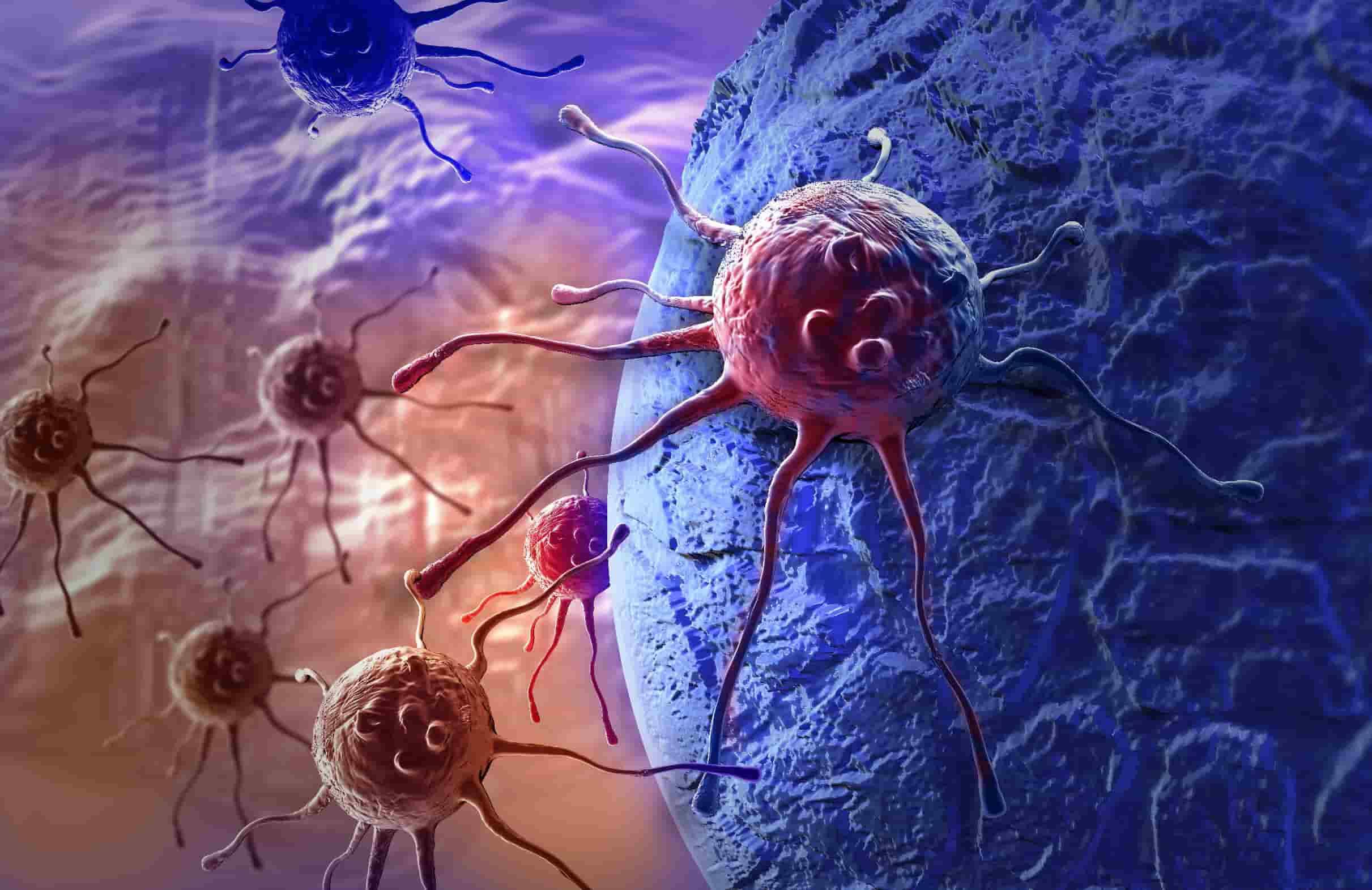 На 4 стадии поражение затрагивает все большее количество органов и тканей