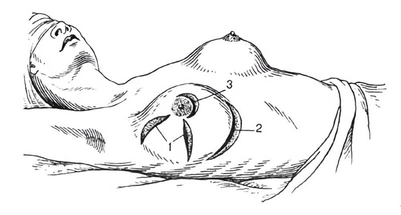 Как выполняют разрезы при мастите