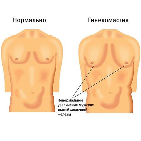 Развитие гинекомастии