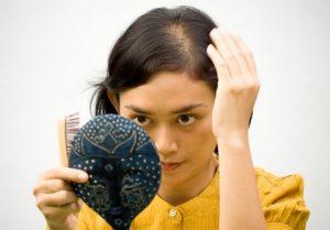 При зобе волосы постепенно редеют, а затем выпадают