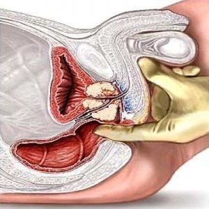 Простатит диагностируется в ходе ректального исследования