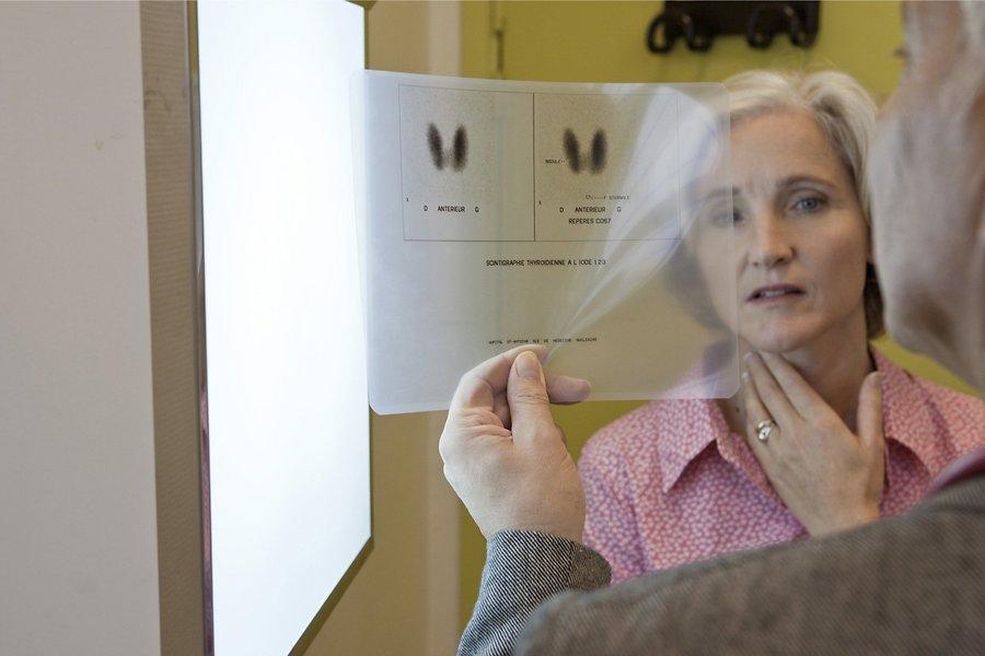Рентген позволяет получить данные о характере уплотнений