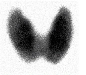 В ходе диагностики рака щитовидки используются рентгенологические методики