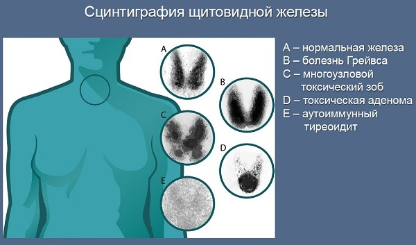 По результатам сцинтиграфии врач может поставить точный диагноз