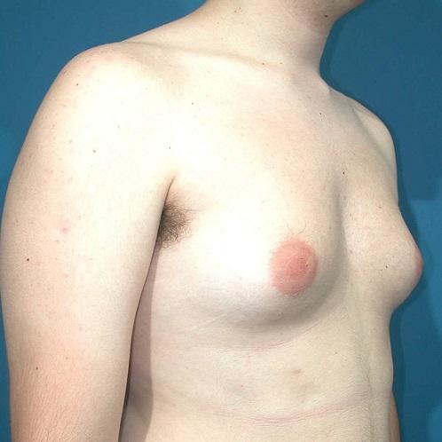 как увеличить грудь народными способами