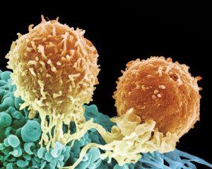 Раковые клетки в простате растут медленно