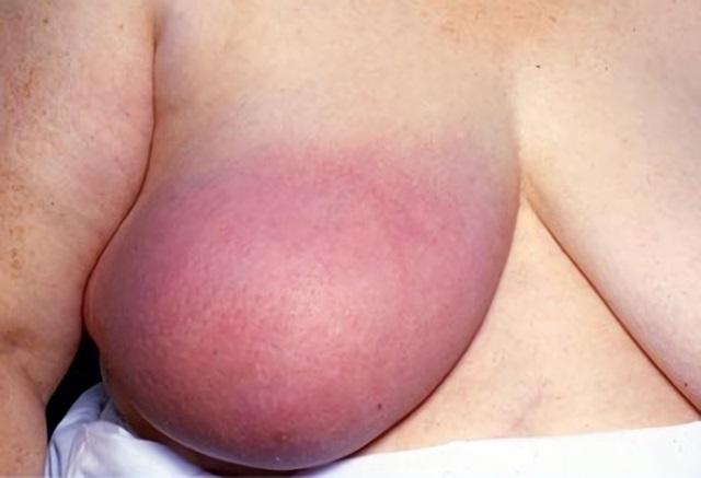 Рожистоподобный рак имеет характерные изменения кожного покрова