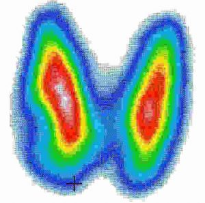 Для диагностики кист используется сцинтиграфия
