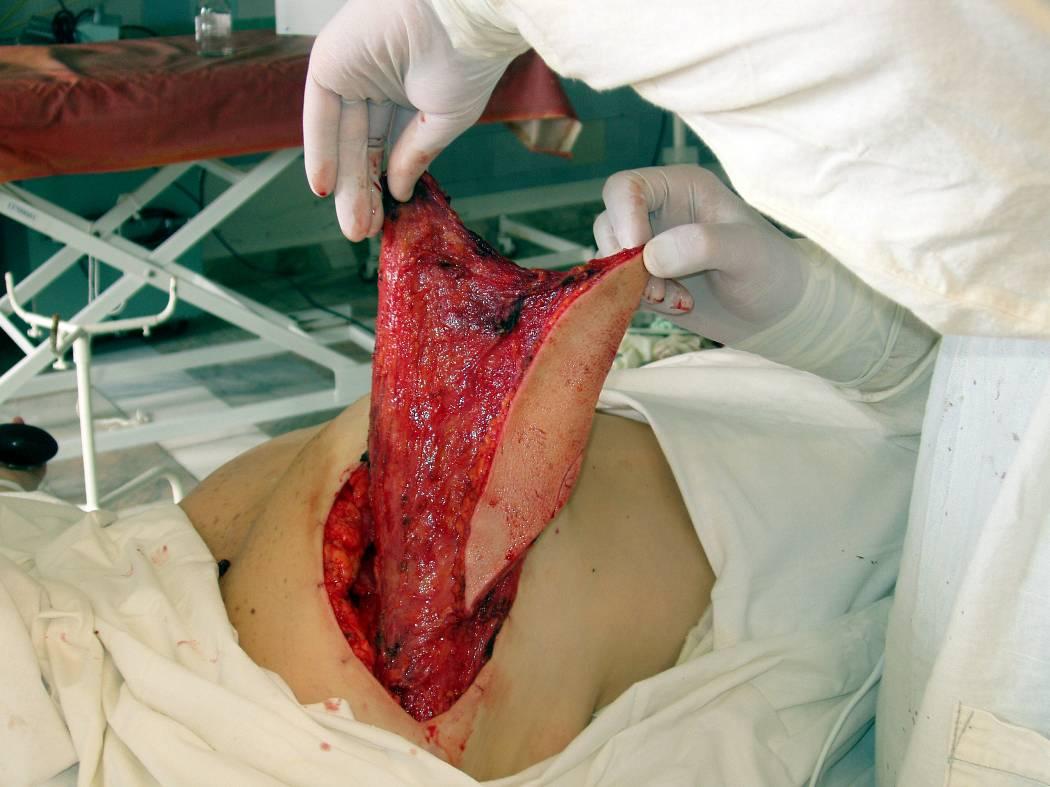 Врач рассекает ткани молочной железы и удаляет новообразование