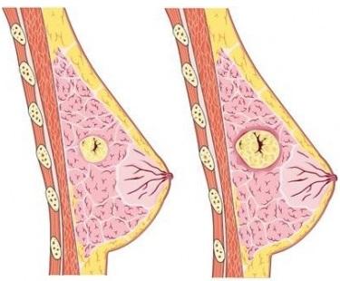 Мастопатия - причина образования шишки
