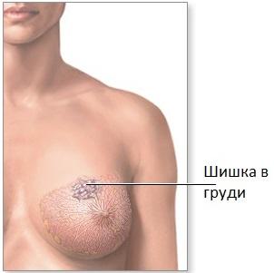 что находится внутри груди беременной фото