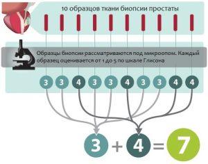 Классификация аденокарциномы проводится по шкале Глисона