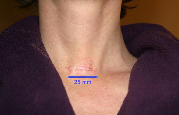 Шрам после удаления щитовидки требует особенного ухода