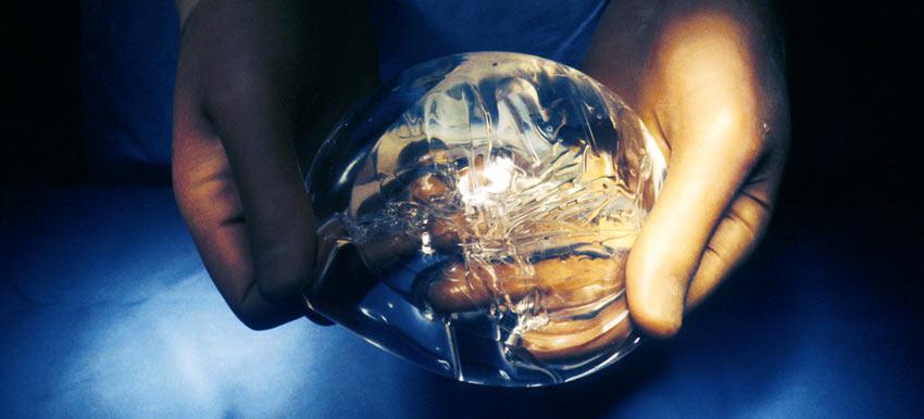 Беременность возможна через два года после внедрения имплантов