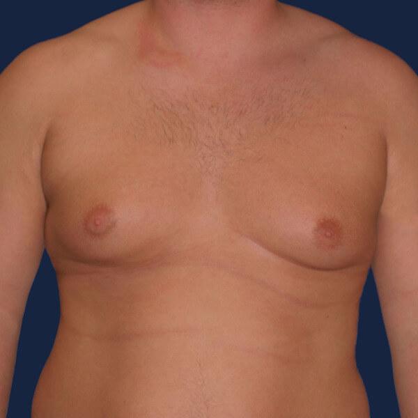 Уплотнение в груди - это один из первых тревожных симптомов