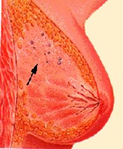 При склерозирующем аденозе в груди образовываются подвижные узелки