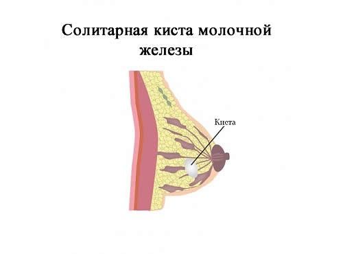 Солитарная киста молочной железы
