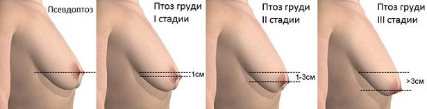 Стадии развития птоза молочной железы