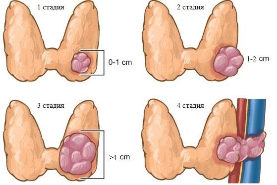 Медуллярный рак щитовидной железы - это агрессивная форма заболевания
