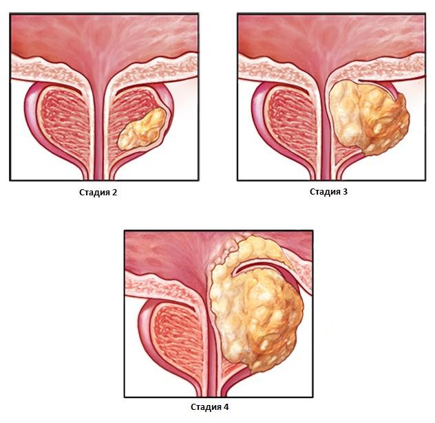Рак простаты у мужчин стадии
