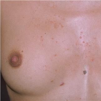 прыщ на молочной железе у женщин причины фото