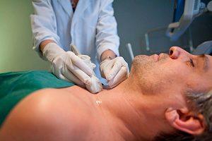 Для назначения правильного лечения щитовидной железы может потребоваться тонкоигольная юиопсия